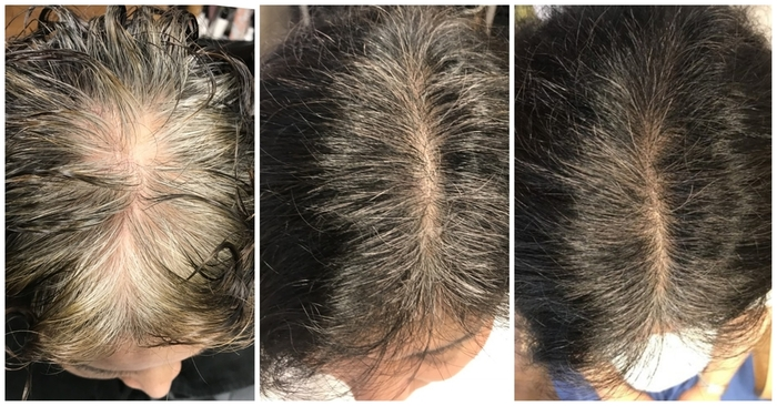 60歳~65歳から始める薄毛対策シャンプー
