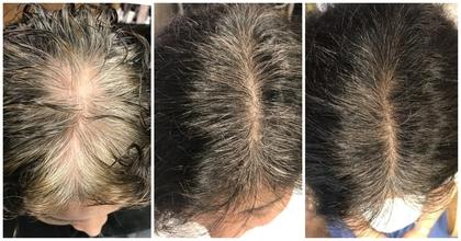 薄毛に悩む女性のミカタ!3つの生活習慣チェックリスト