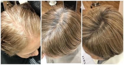 年齢を重ねるごとに不安になる女性の薄毛解決する3つのセルフケア