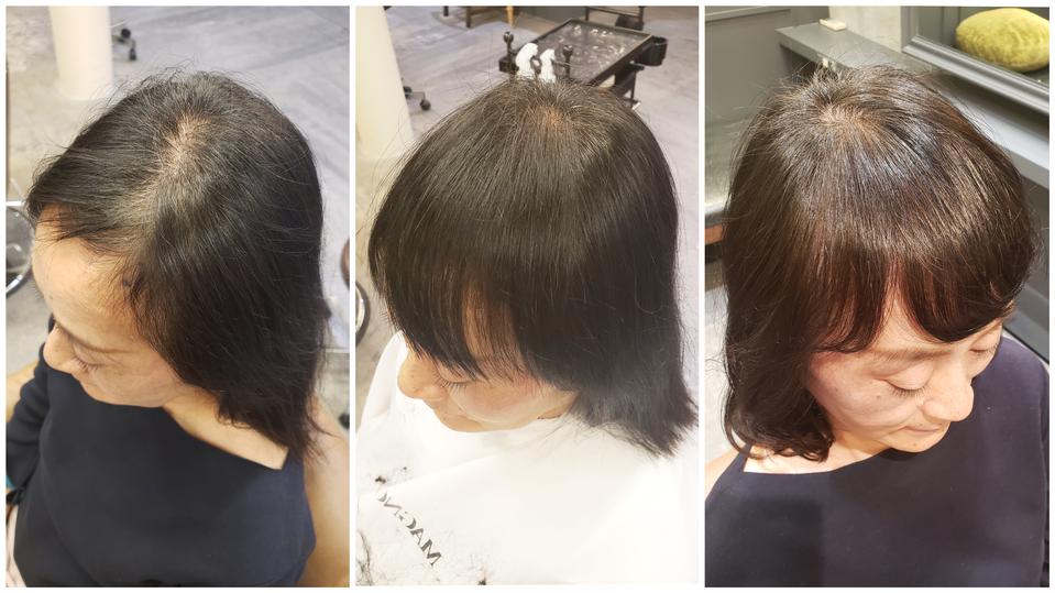 女性 前髪 薄毛 【発毛実績】女性の30代後半からは前髪の薄毛にご注意を。