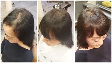 薄毛を解消する前髪カット ビフォー&アフター